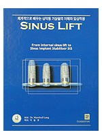 SINUS LIFT - 체계적으로 배우는 상악동 거상술의 이해와 임상적용 -