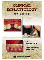 Clinical Implantology-외과.보철.기공