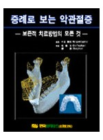 증례로 보는 악관절증-보존적 치료방법의 모든것