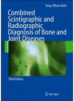 Combined Scintigraphic & Radiographic Diagnosis of Bone & Joint Diseases,3/e