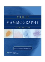 Atlas of Mammography,3/e