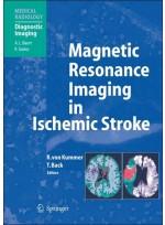 Magnetic Resonance Imaging in Ischemic Stroke