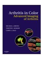 Arthritis in Color: Advanced Imaging of Arthritis