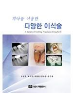 치아를 이용한 다양한 이식술