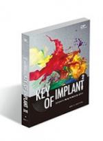 Key of Implant 2 - 임프란트의 핵심 키워드를 말하다