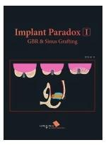 Implant Paradox I GBR & Sinus Grafting