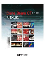 Cone Beam CT를 이용한 치과치료