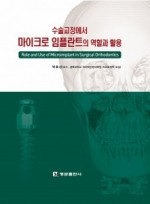 수술교정에서 마이크로 임플란트의 역할과 활용