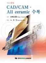 CAD CAM All ceramic 수복(시스템별)