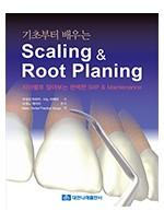 기초부터 배우는 Scaling & Root Planing