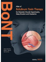 Atlas of Botulinum Toxin Therapy for Masseter Muscle Hypertrophy, Sleep Bruxism and Headache
