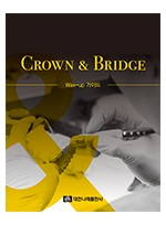 CROWN & BRIDGE - Wax-up 가이드