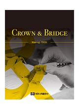 CROWN & BRIDGE - Wax-up 가이드