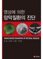 영상에 의한 망막질환의 진단(IMAGE BASED DIAGNOSIS OF RETINAL DISEASE)