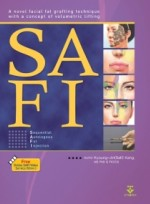 SAFI-English ver. (Sequential Autologous Fat Injection)