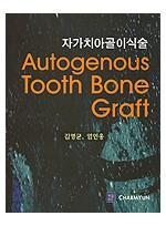 자가치아골이식술 - Autogenous Tooth Bone Graft -