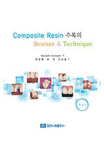 Composite Resin 수복의 Science & Technique
