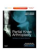Partial Knee Arthroplasty