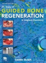 20 Years of Guided Bone Regeneration in Implant Denistry [Hardcover]
