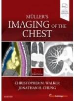 Muller's Imaging of the Chest, 2/e