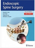 Endoscopic Spine Surgery 2nd Edition